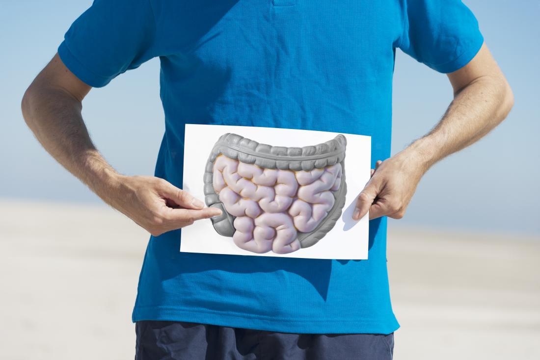 човек, който държи изображение на червата, където се проявява мезентериален паникулит