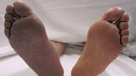 Cyanose, ou peau bleue, sur le pied de la personne. Symptôme de la méthémoglobinémie et de l'argyrie.
