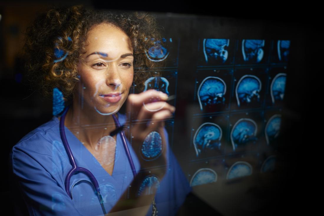 医師は脳のMRIスキャンを調べる。