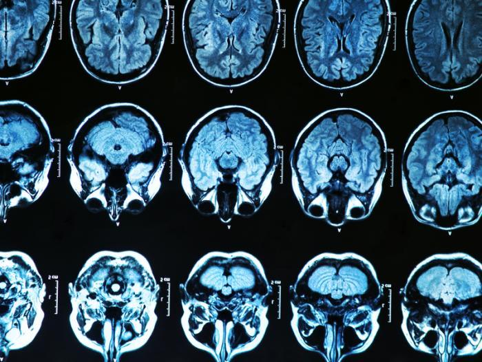 Balayage du cerveau