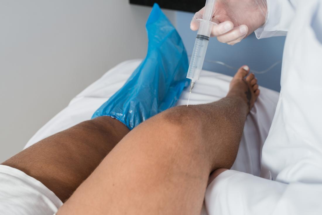 Озонотерапията се прилага върху коляното чрез инжектиране.