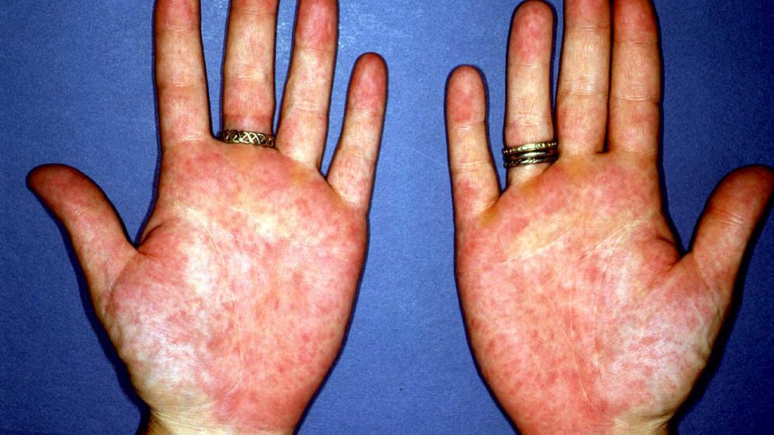 Eritema palmar causando palmas vermelhas.