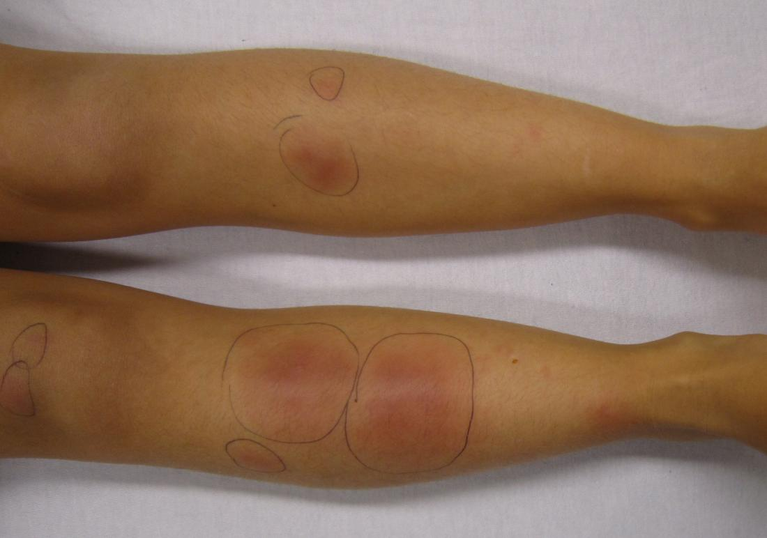 Rumień guzowaty jest formą zapalenia panniculitis. Image credit: James Heilman, MD, (2010, 18 września)