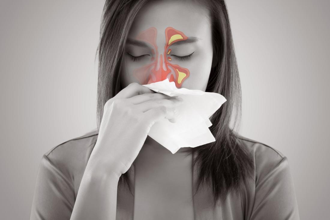 Mulher assoando o nariz devido a pansinusite