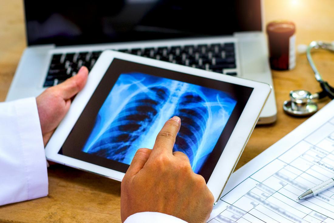 Doutor que olha o raio X de caixa na tabuleta.