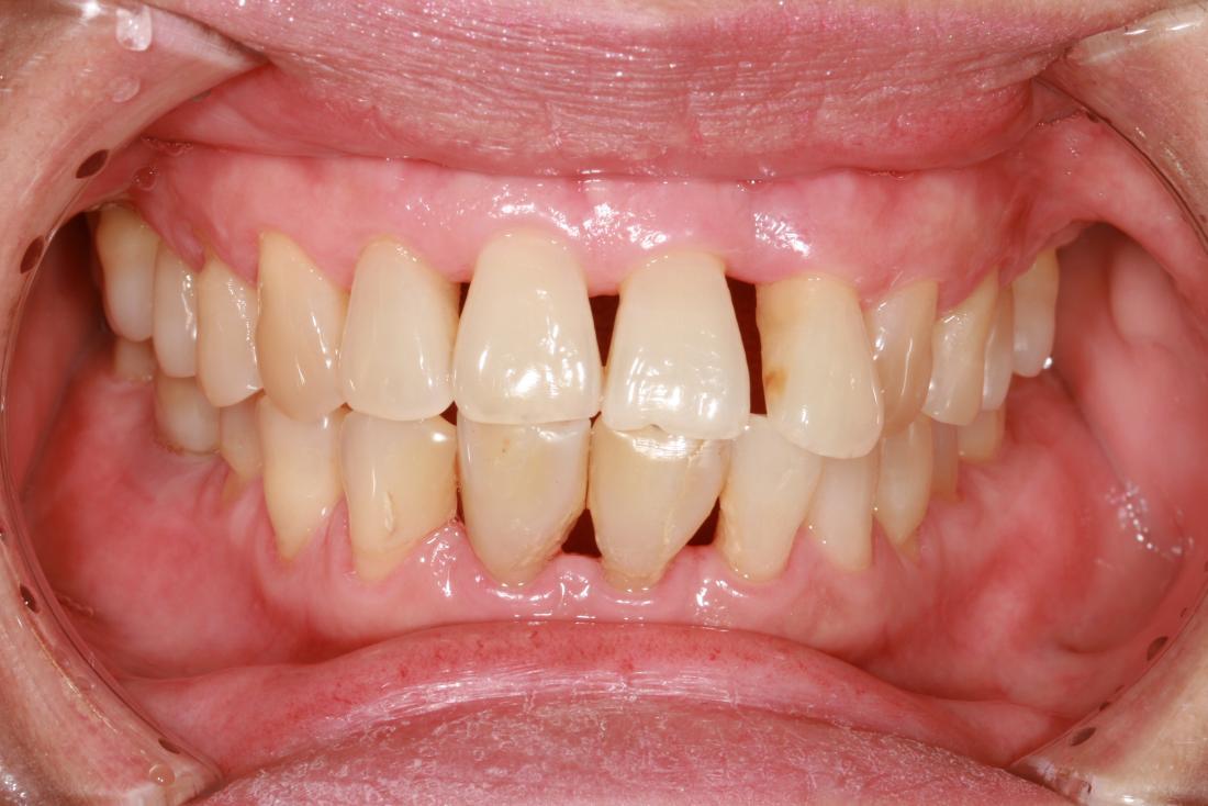 Lorsque les gencives se retirent, les dents semblent plus longues. Des lacunes peuvent également apparaître entre les dents.