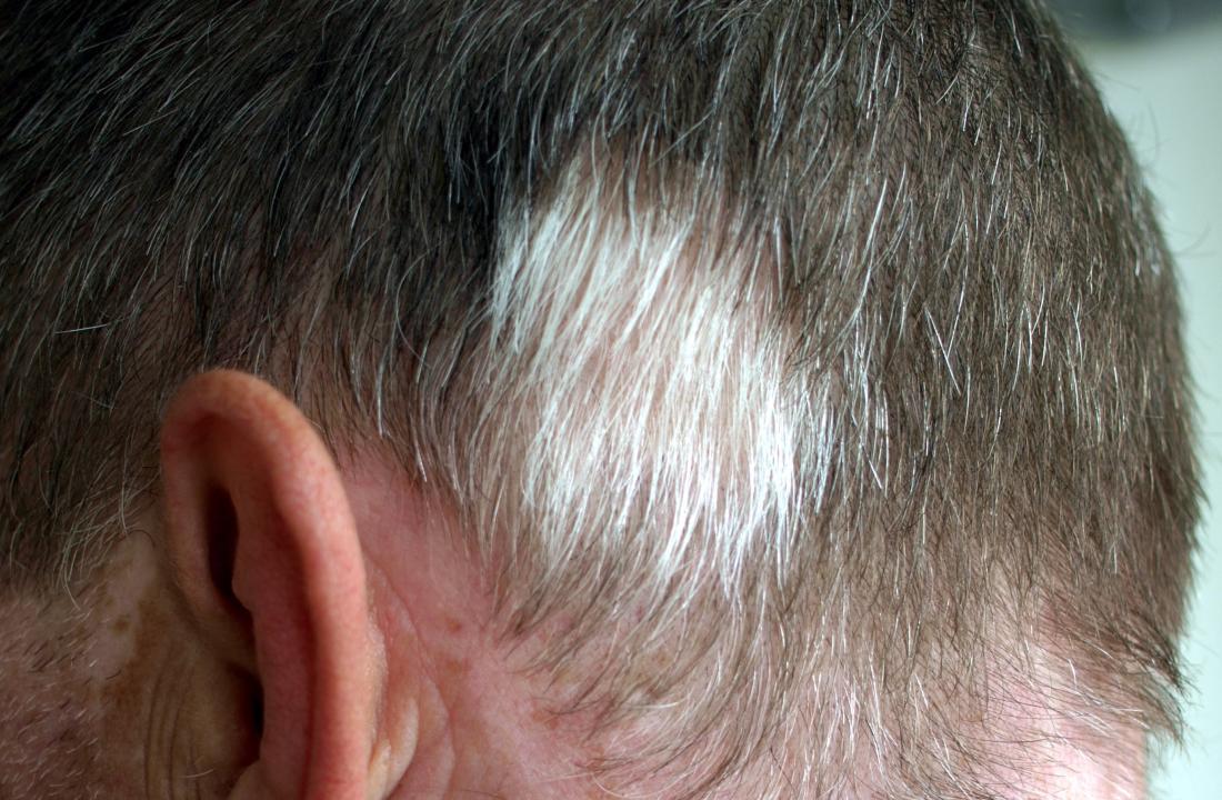 Poliosis beyaz bir saç uzamasına neden olur. Resim kredisi: Klaus D. Peter, Gummersbach, Almanya, (2011, 5 Kasım)
