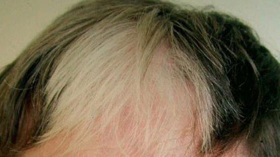 Poliosisin saçı etkiler. Resim kredisi: DermNet Yeni Zelanda