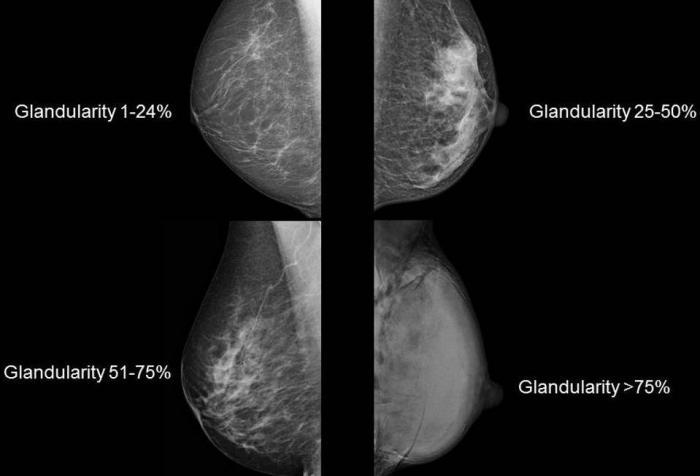 [мамограми с четири различни плътности на гърдата]