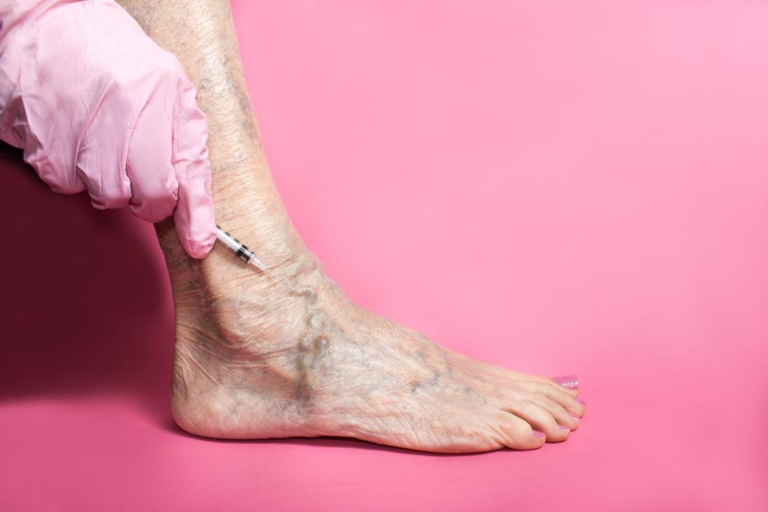 La sclérothérapie étant pratiquée sur les varices du pied.