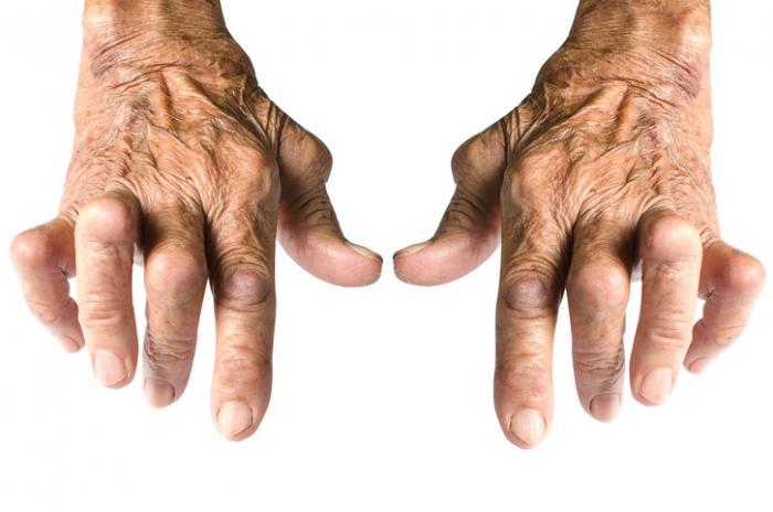 Mãos artríticas