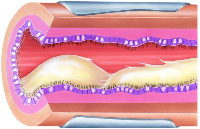 Бронхиална слуз, причиняваща запушване и стесняване на дихателните пътища