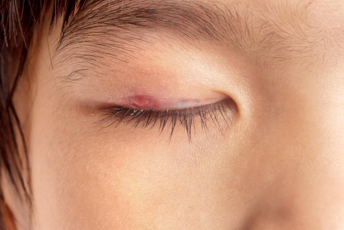 Person mit geschlossenem Augenlid aufschlussreicher Gerstenkornstoß auf der Haut.