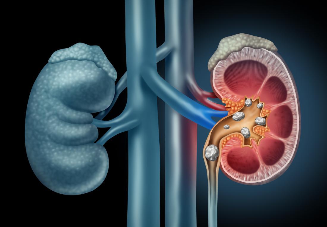 Nierensteinabbildung