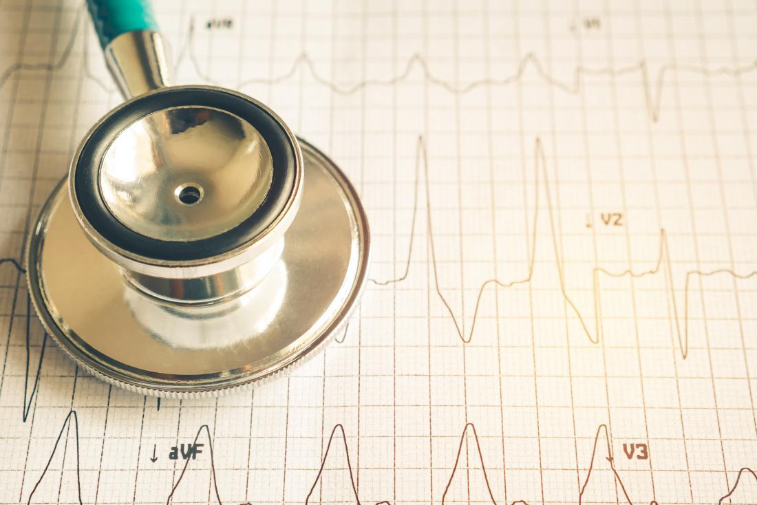 Стетоскоп на EKG, измерващ сърдечния ритъм и ритъма.