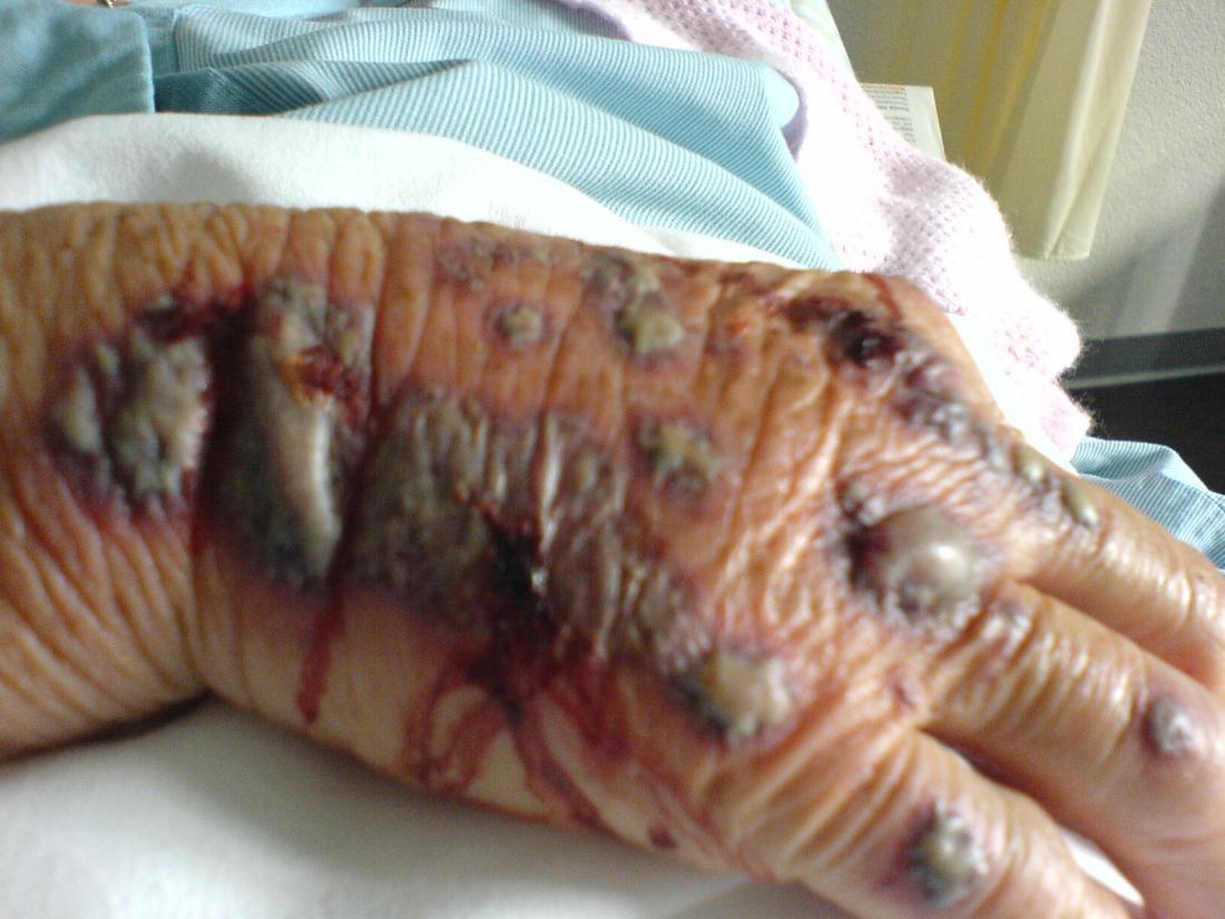 Crédito da mão da vasculite PDFrei, 2011