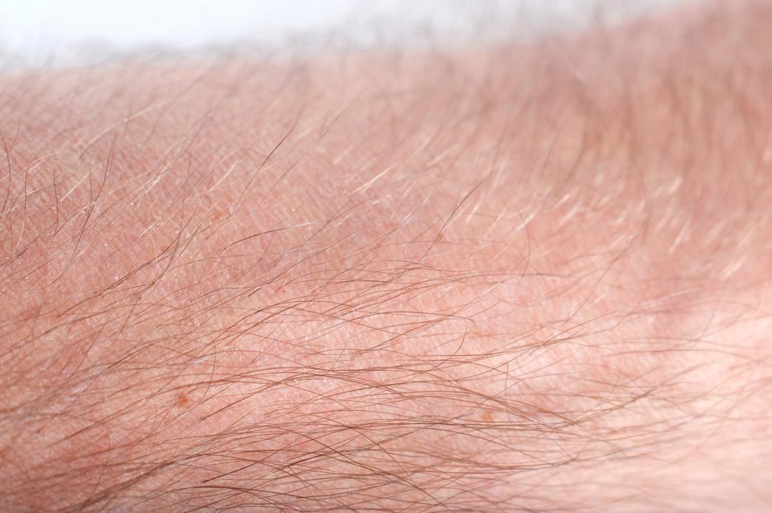 затваряне на космите върху ръката на човека