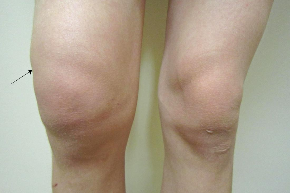 Uma efusão traumática no joelho direito. Crédito da foto: James Heilman, MD.