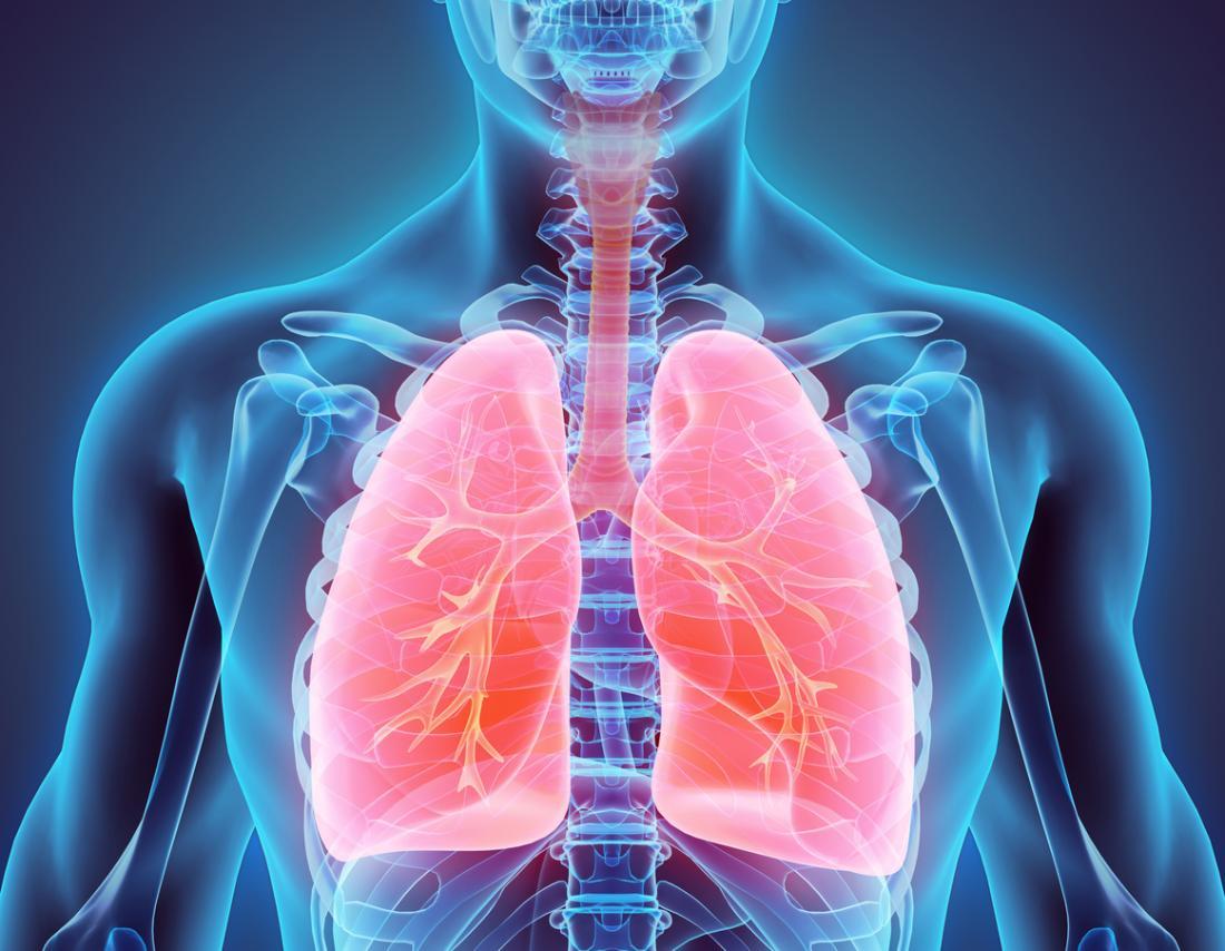Pleurisy засяга лигавицата между белите дробове и гръдната стена.