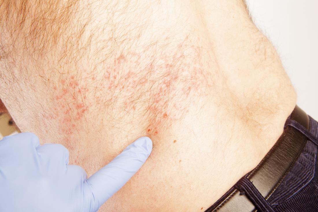 L'uomo con scandole viene detto cosa aspettarsi dal medico indicando eruzioni cutanee sulla schiena