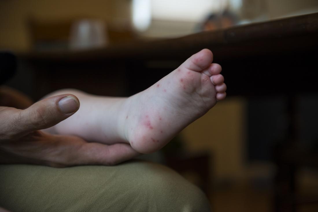 Hand Fuß und Mund Fuß