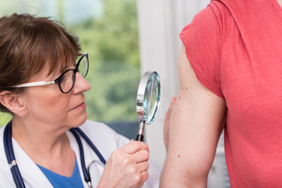 患者の前腕を検査するために虫眼鏡を使用する医師または皮膚科医。