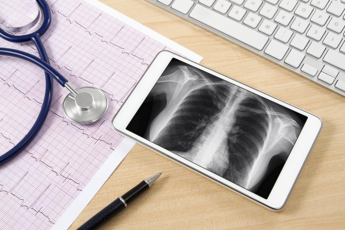 医師の机の上にX線と医療機器を備えたデジタルタブレット