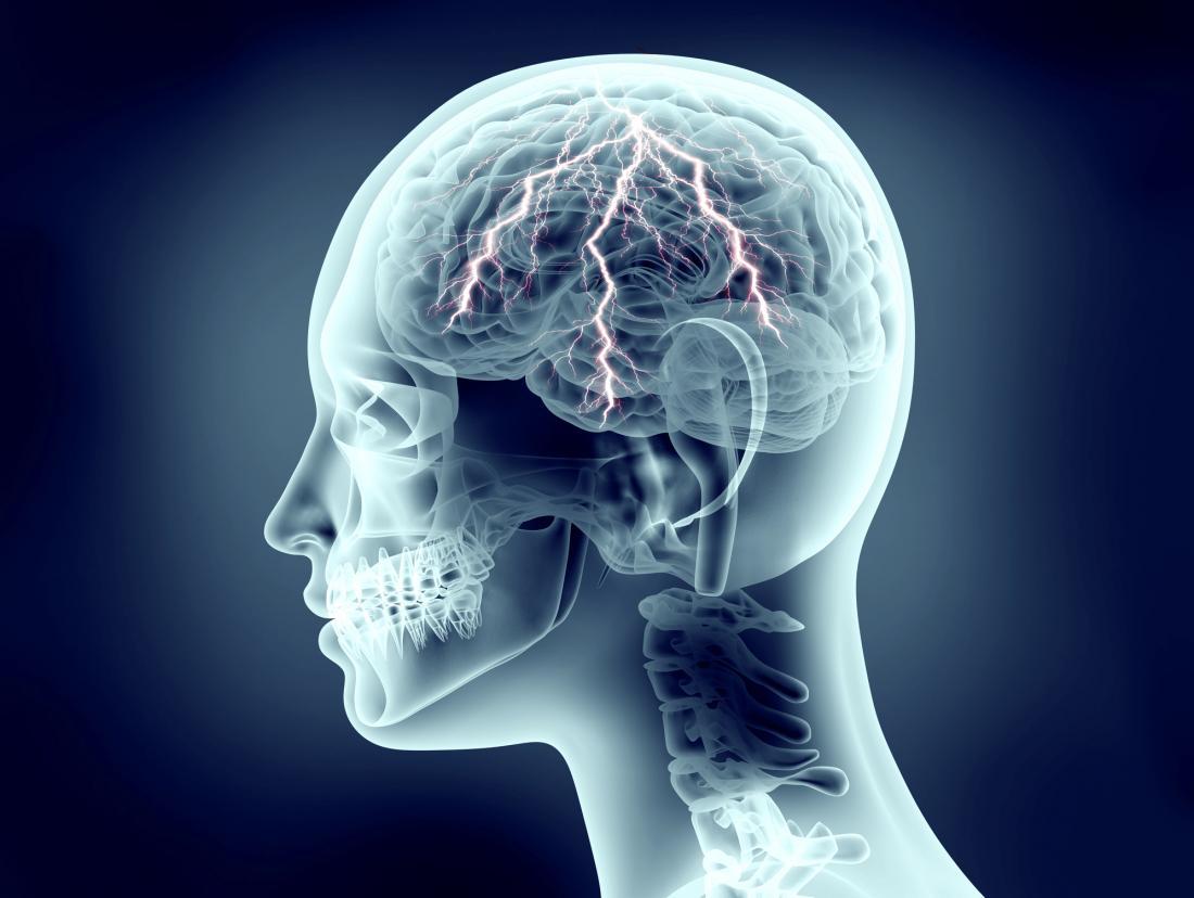 人間の頭部の雷によるX線画像