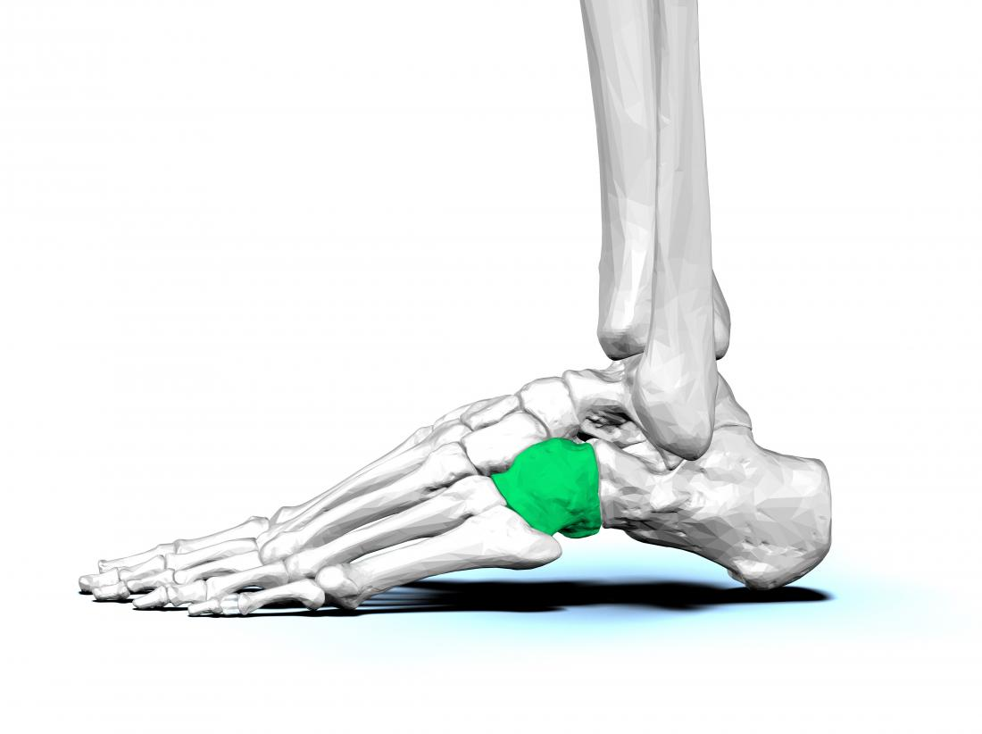 O osso cubóide no pé que pode causar a síndrome cubóide