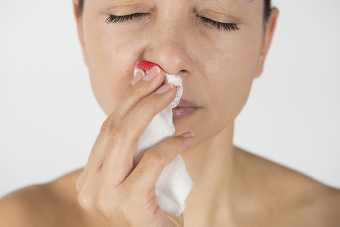 femme avec un saignement de nez
