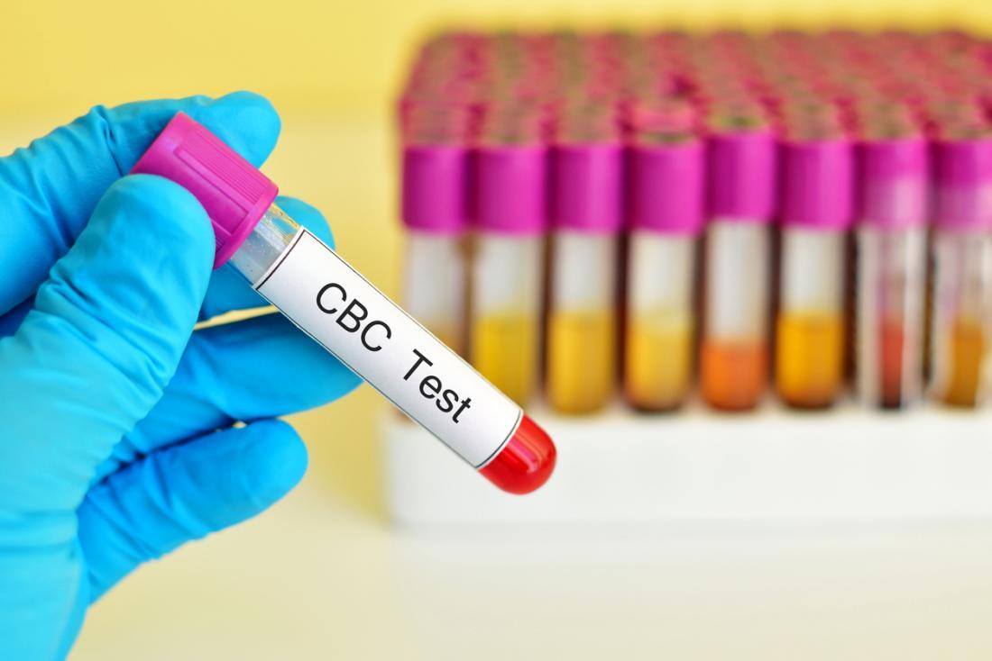 teste de cbc para endometrite