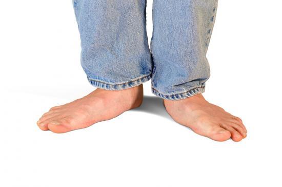 平らな足は、足に識別可能な弓がないときである。