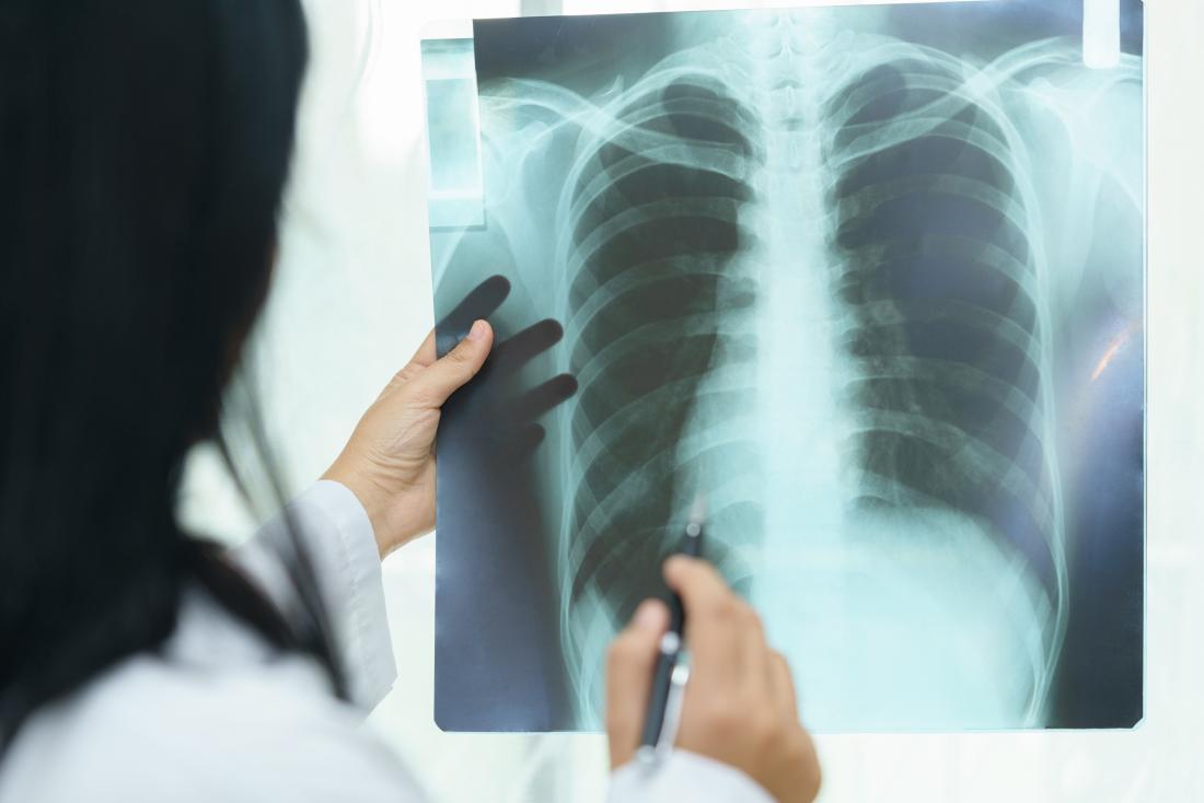Доктор, гледащ белите дробове, за възможна интерстициална белодробна болест