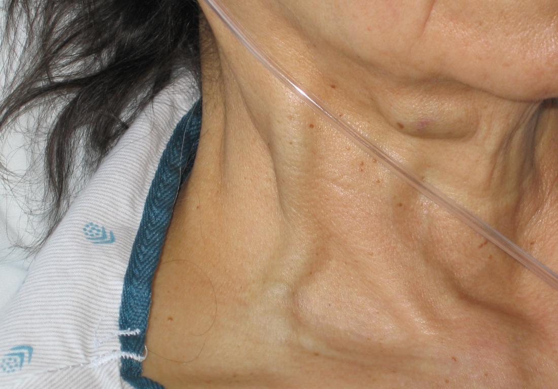 Distensione della vena giugulare. Credito immagine: Ferencga, (2003, one 25)