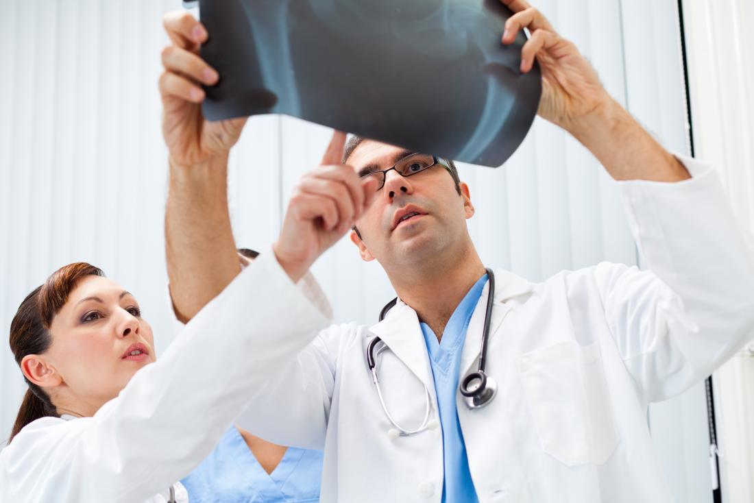 Doktoren, die auf Röntgenstrahl des Beckens zeigen.