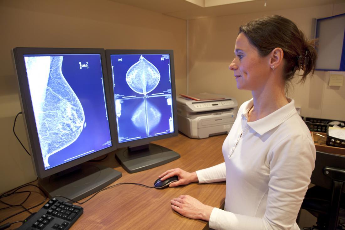 乳がんの早期診断は回復の機会を増やします。