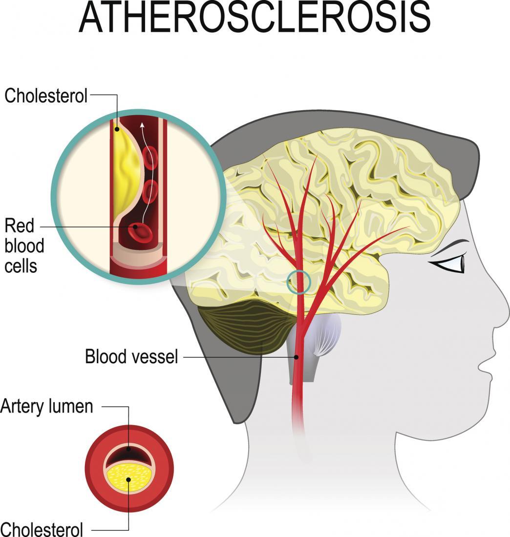[атеросклерозата е вид мозъчно-съдова болест]