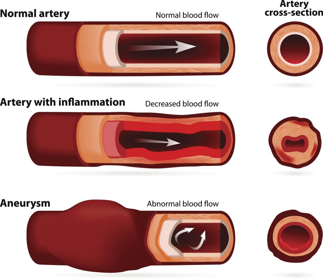 [aneurisma pode resultar de uma deformidade em um vaso sanguíneo]