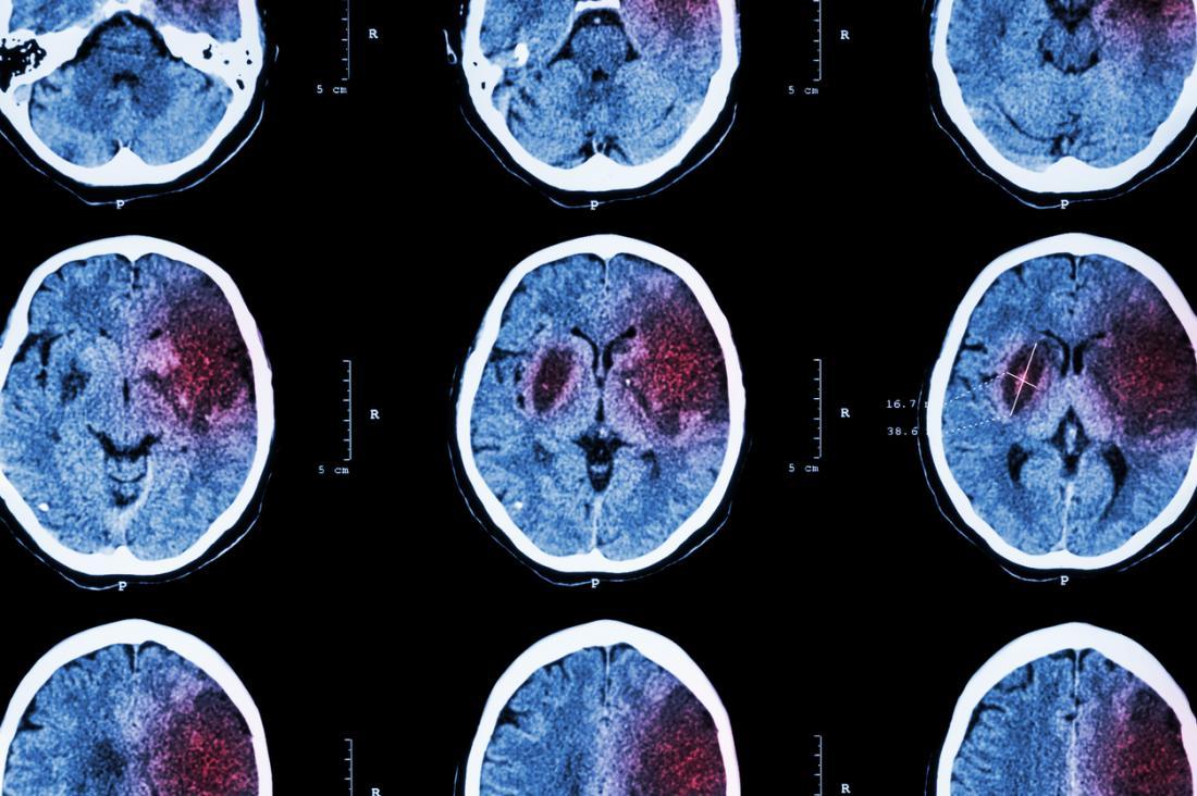 [varreduras cerebrais mostram acidente vascular cerebral isquêmico]