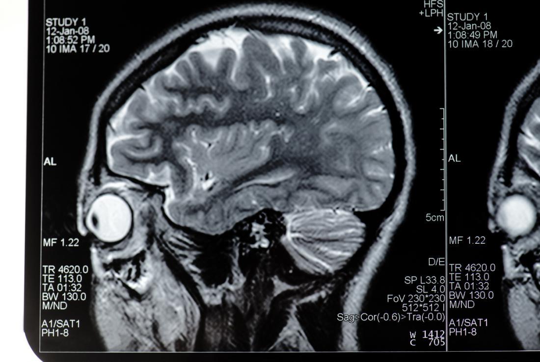 Cabeça de ressonância magnética olho cerebral