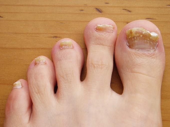 Fungo dell'unghia del piede, credito immagine Pepsyrock, 2010