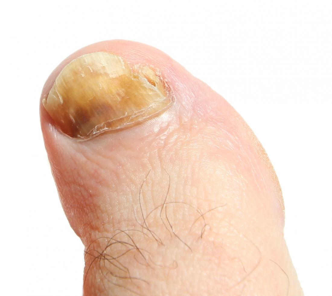 Grande fungo dell'unghia del piede, Image credit Allorge, L., 2014