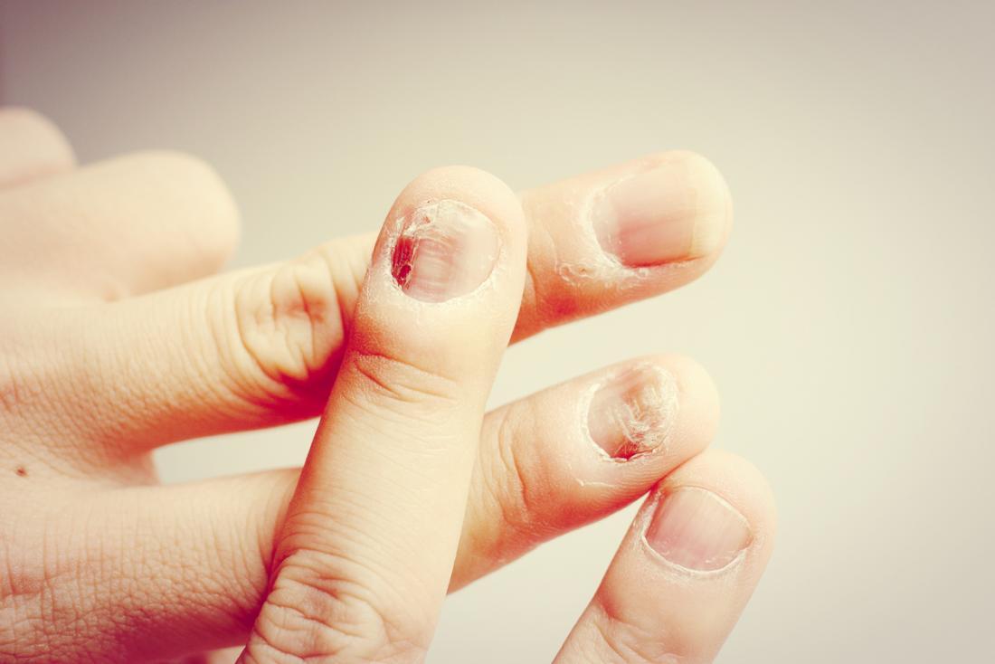 Une personne avec des ongles qui s'écaillent et qui craquent.
