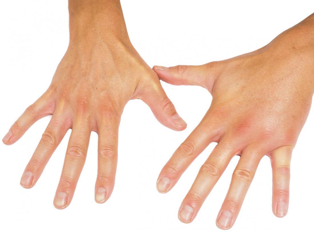 Schwellungen in den Händen und Füßen können ein Symptom der Sklerodermie sein.