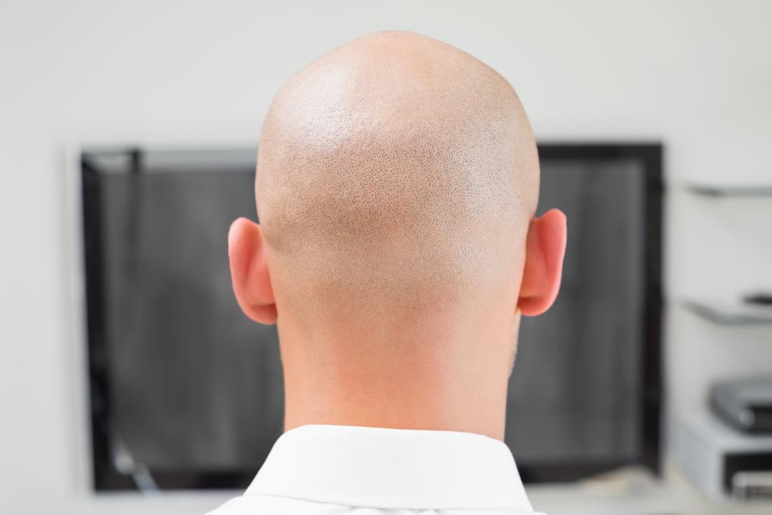 Zurück vom Kopf des Mannes mit Alopecia Totalis, vor Computer bei der Arbeit.