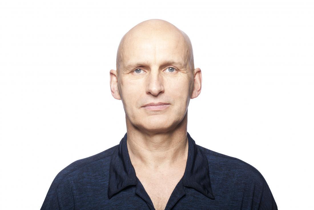 Homem com alopecia universalis, completamente careca.