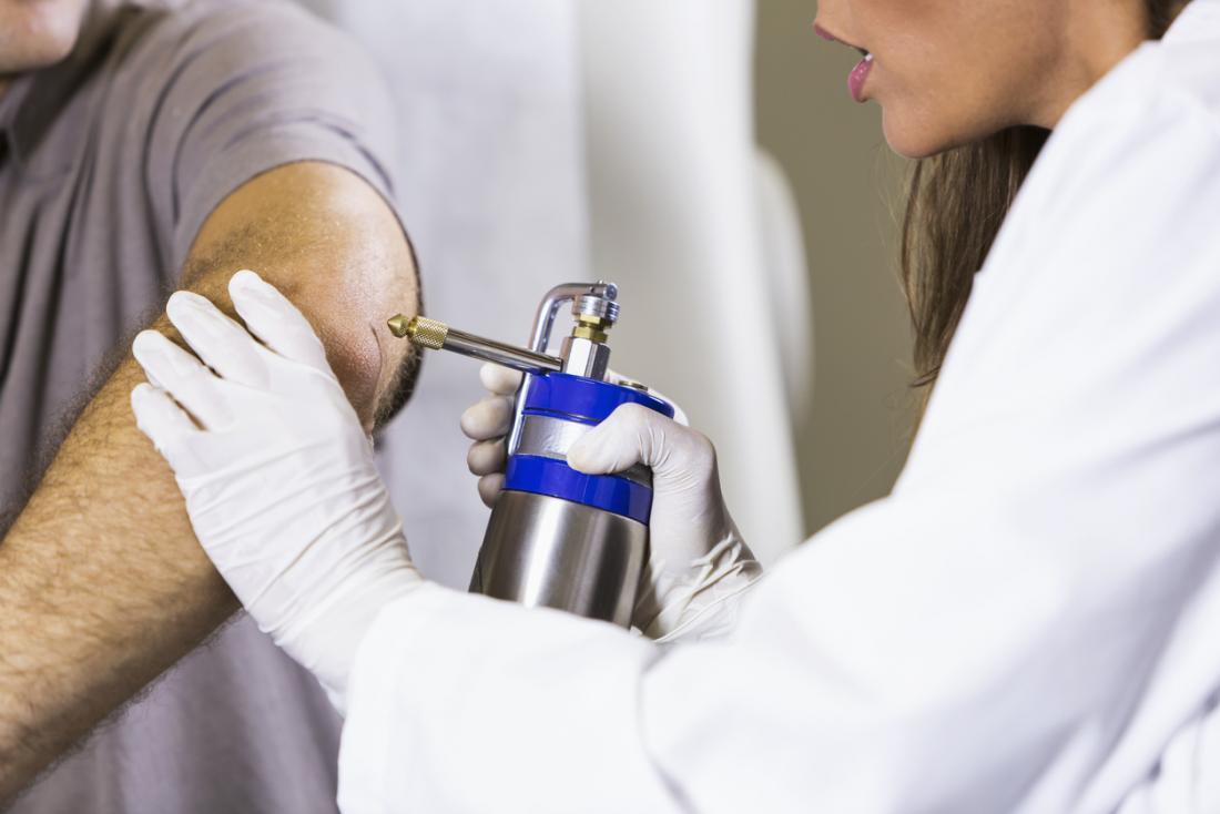 A criocirurgia, ou terapia de congelamento, é realizada na verruga.