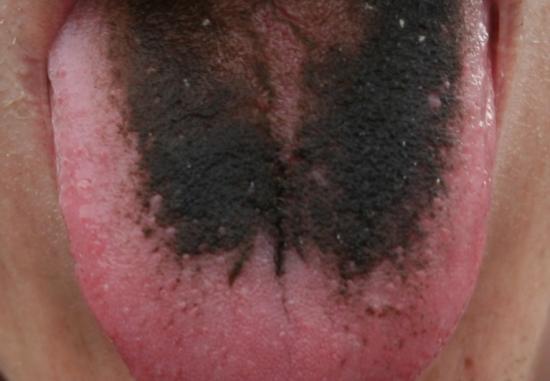 Schwarze behaarte Zunge. Bildnachweis: Com4, (2007, 22. Februar)
