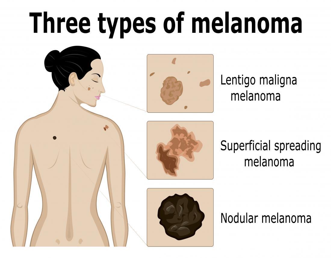 drei Arten von Melanomen