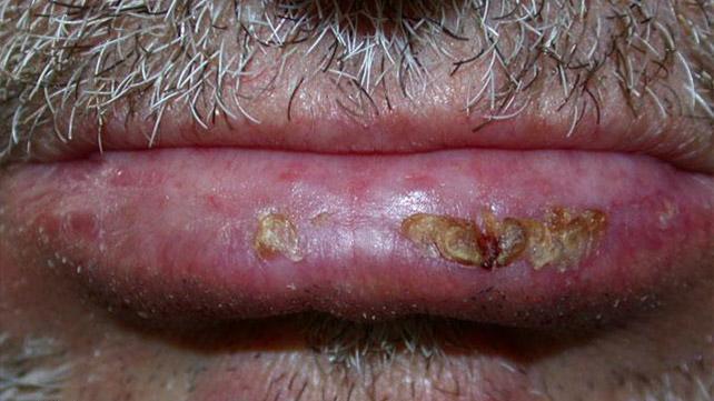 Cancro alla pelle del labbro